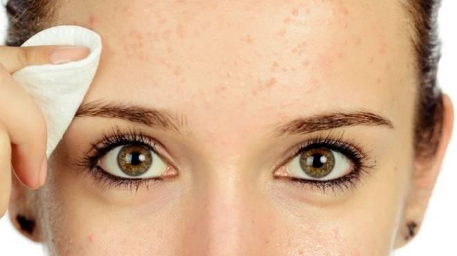 soñar con granos espinillas o acne